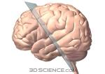 nervous_brain_glassplane_web